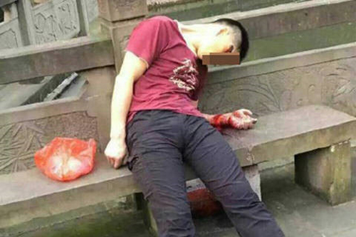 成都公园内一男子头部中枪身亡 脚边